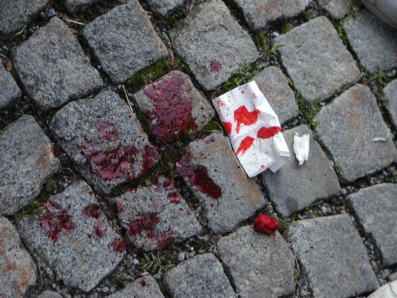 Окровавленную жертву ревнивца спасли росгвардейцы в Мончегорске
