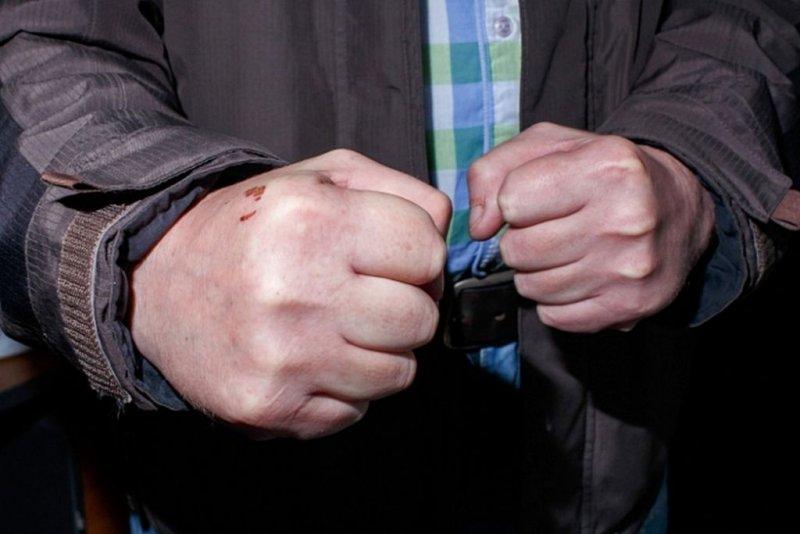 Сломал челюсть прохожему житель Гаджиево