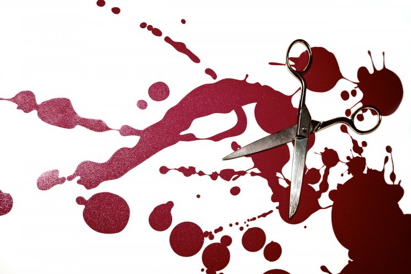 Ножницами раскроила плечо любимому ревнивая мурманчанка